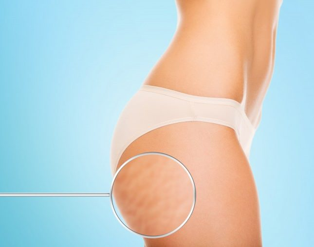 Cellulite: All About Those Butt Dimples